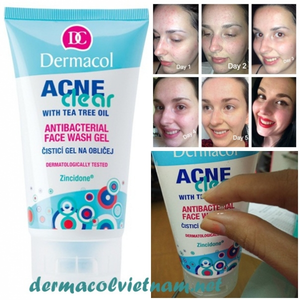 Sữa Rửa Mặt Cho Da Mụn Dermacol Acneclear Antibacterial Face Wash Gel