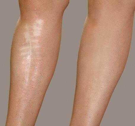 Làm thế nào che vết sẹo ở chân ?
