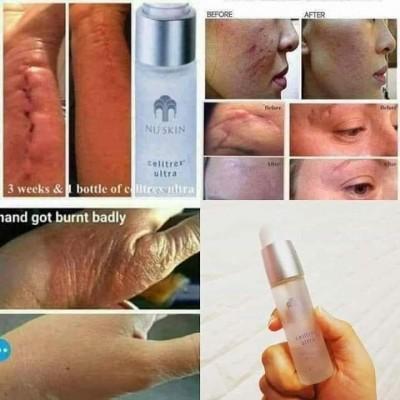 Serum phục hồi, tái tạo da