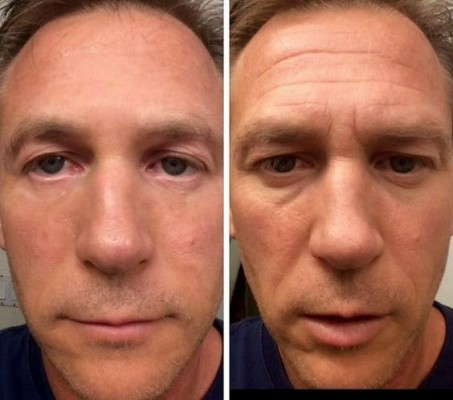 Viên nâng cơ Tru Face® Essence Ultra